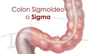 detox dieta prodotti colon sigmoideo tumore